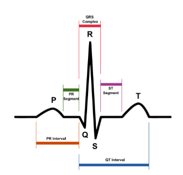 qrs.PNG
